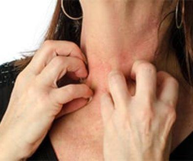 Chronic Hives Treatment