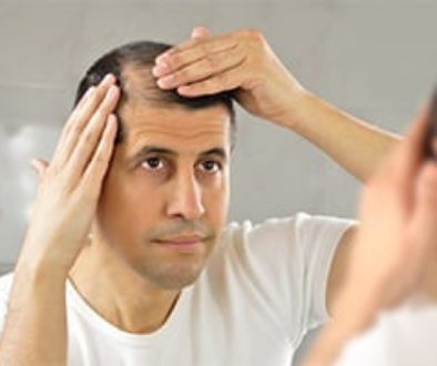 Cope with Hair Loss